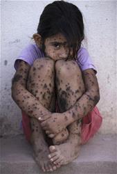Aixa Cano, 5, who has hairy moles all over her body that doctors can't explain.   (AP Photo/Natacha Pisarenko)