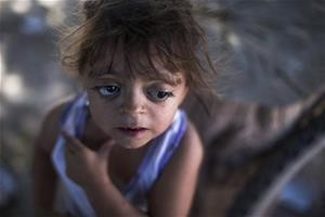 Camila Veron, 2, born with multiple organ problems and severely disabled, stands outside her home in Avia Terai, in Chaco province, Argentina.   (AP Photo/Natacha Pisarenko)